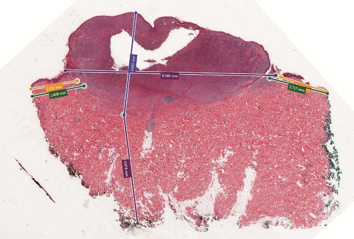 Skin Melanoma showing digital measurements of Breslow's Depth and distance to margins.