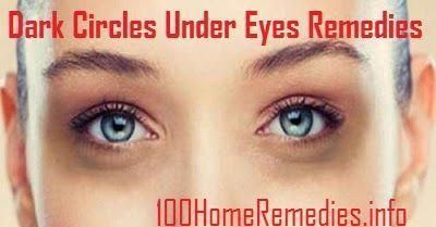 Learn how to treat your dark circles under eyes and eye ...