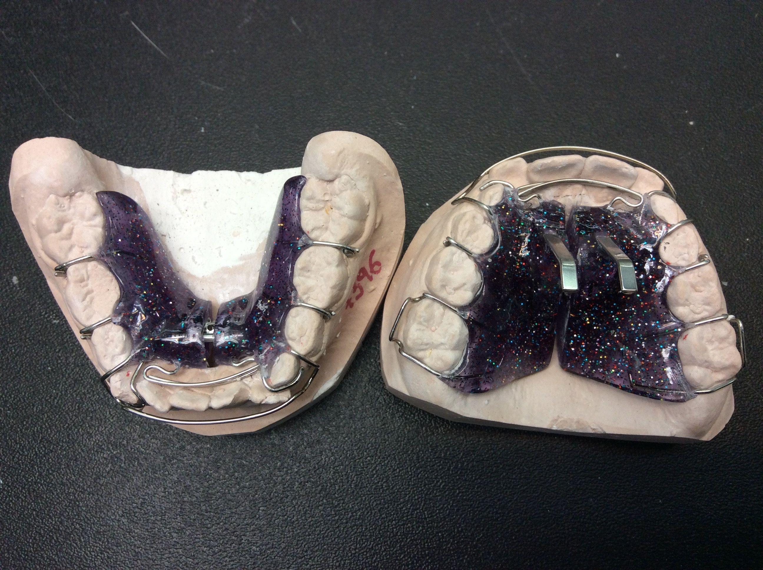 Placas sander de expansión #sander #niños #ortodoncia | Ortodoncia ...