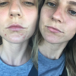 The 5 Natural Supplements To Stop Hormonal Acne Cystic