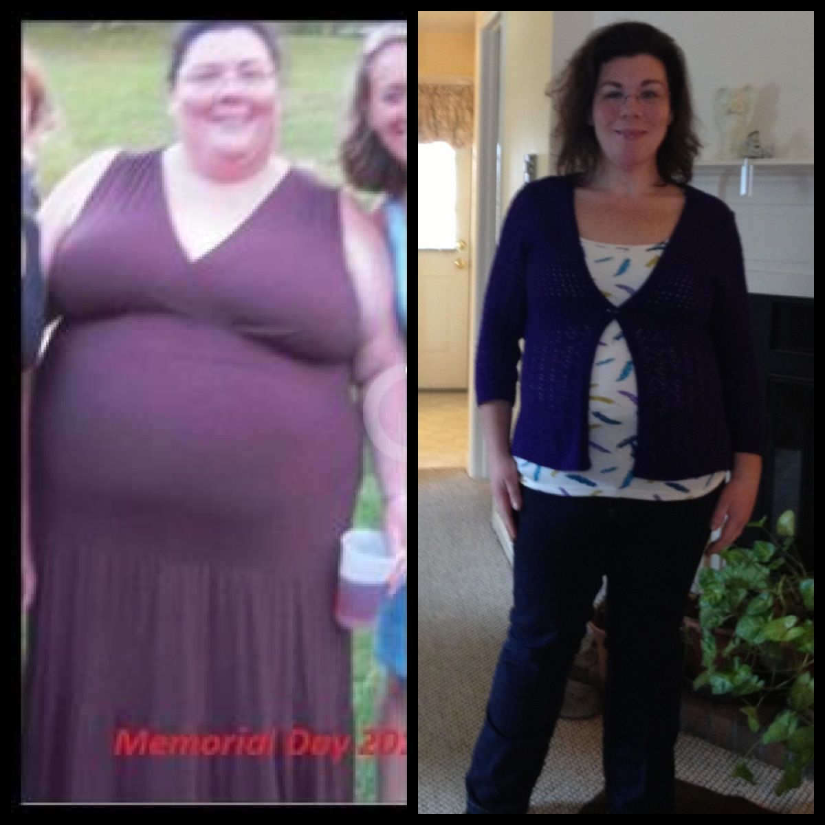 Pin on Diet Weight Loss Procedures and More