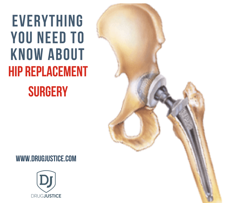 Everything You Need to Know About Hip Replacement Surgery | Get ...
