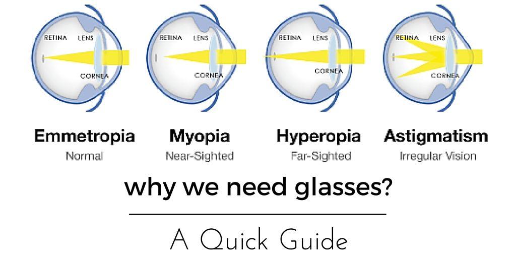 myopia hyperopia asztigmatizmus