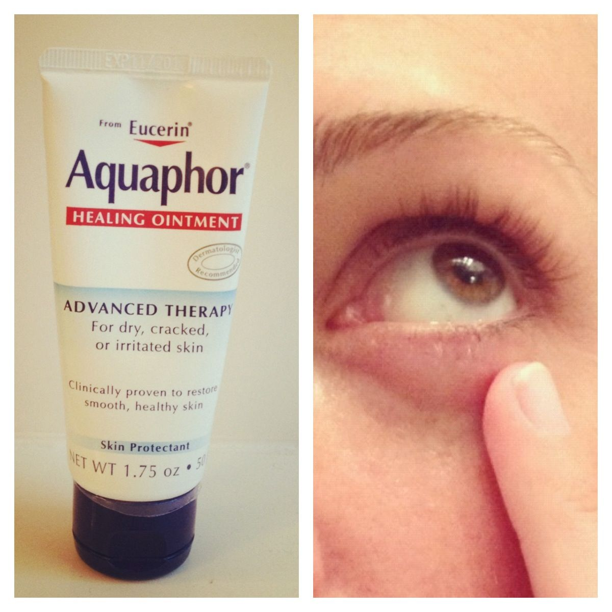 aquaphor on face