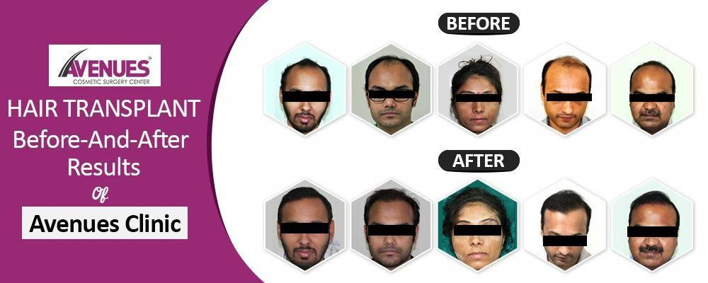 all about hair loss losinghair Hair transplant, Hair