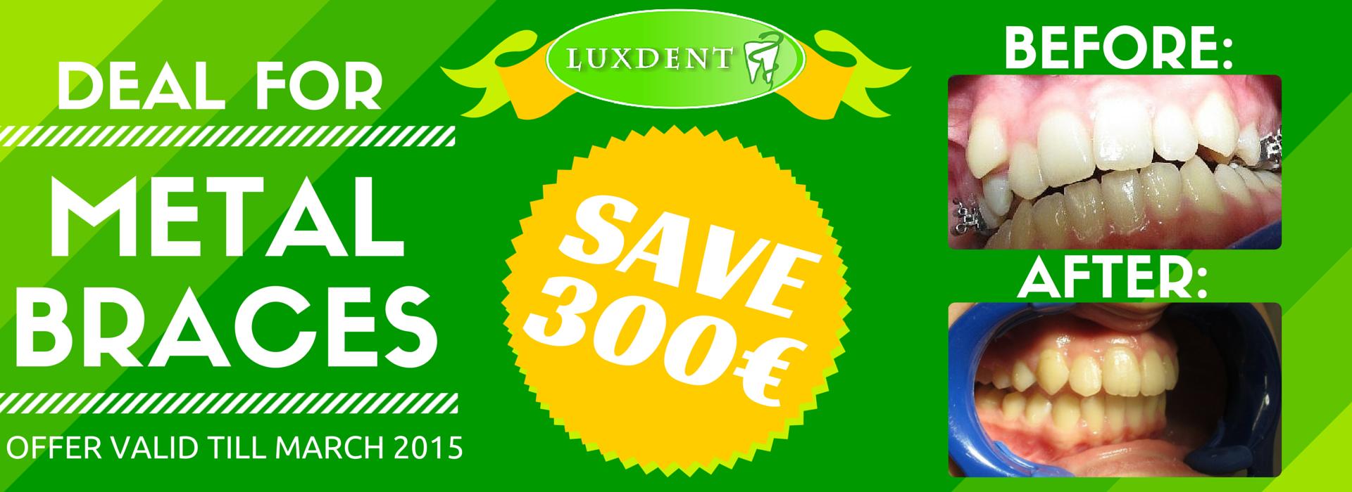 Luxdent