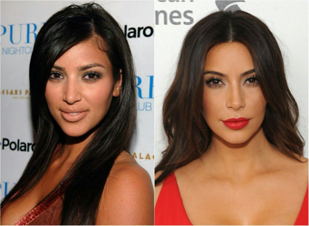 A Successful Plastic Surgery Will Make You Wonder If These - Laser hair removal face