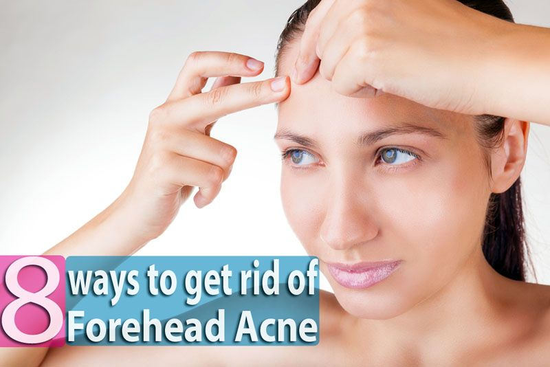 How to get rid of a pimple overnight at home