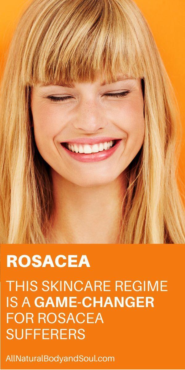 Rosacea GameChanging Skincare Routine in 2020 Rosacea