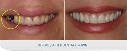 A Crown Is Used To Restore Teeth That Are Decaying And A