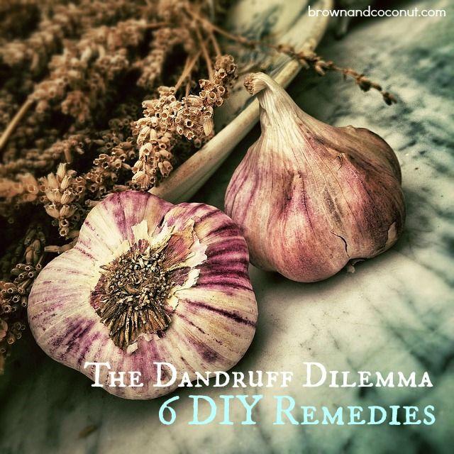 Garlic Dry Scalp Remedy Dandruff Remedy Dry Flaky Scalp Diy Hair Wash