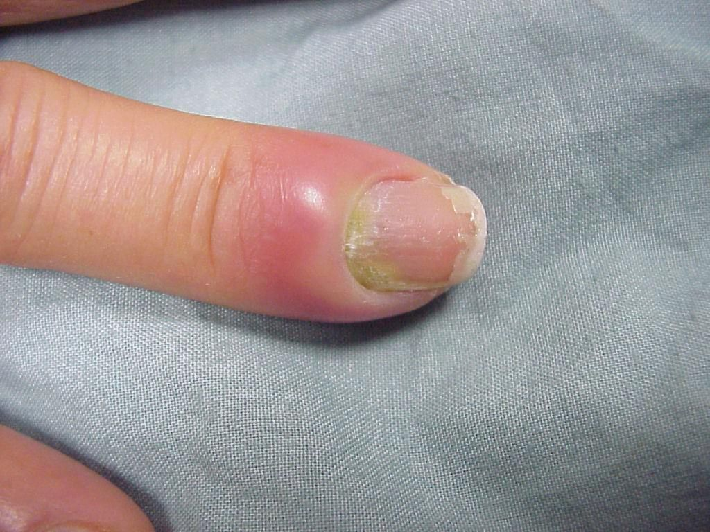 Nail Infection - http://protojars.com/nail-infection/ | hair and ...