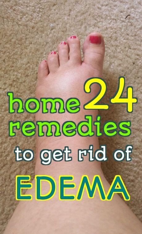 24 Effective Home Remedies To Treat Edema | Diet | Water ...