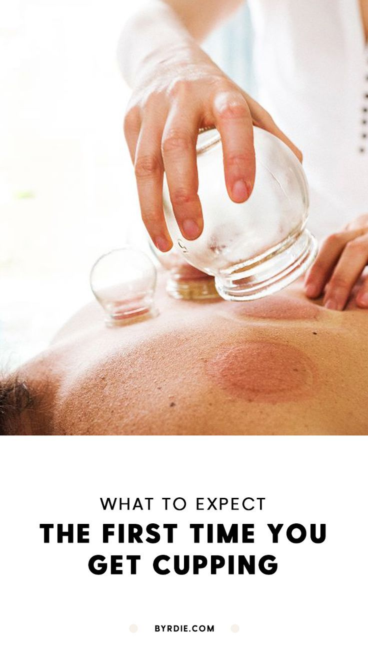 Want #fire #cupping done on the area prone to #pain? Then