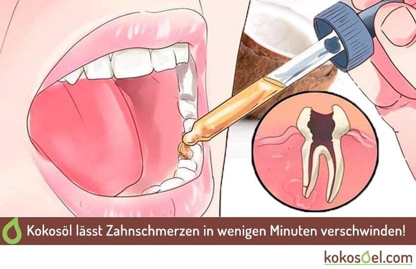 Nelken Gegen Zahnschmerzen