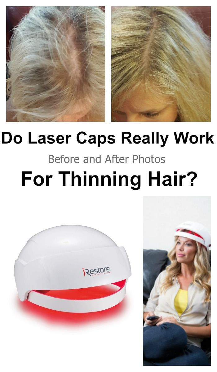 Does Irestore Work For Women Before After Pictures Laser Cap