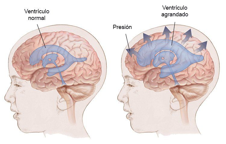 Líquido en el cerebro con ultrasonido