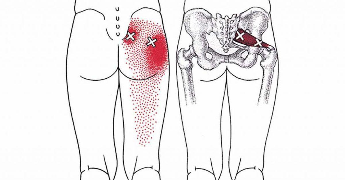 Eine Reizung des Ischiasnervs kann zu Hüftschmerzen und Schmerzen im ...