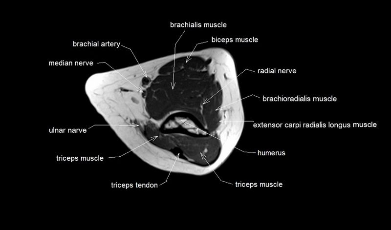 mri anatomy of elbow   axial cross sectional anatomy of ...