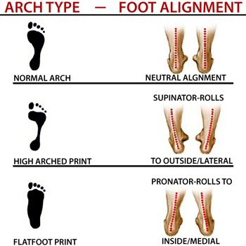 High Arch Foot Vs Flat Foot