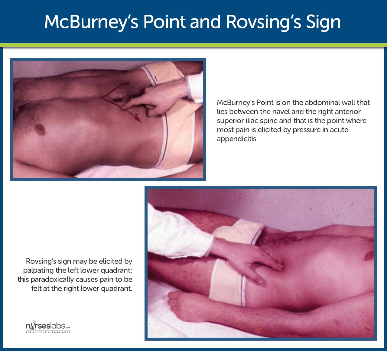 Appendicitis - causes, symptoms, diagnosis, treatment ...
