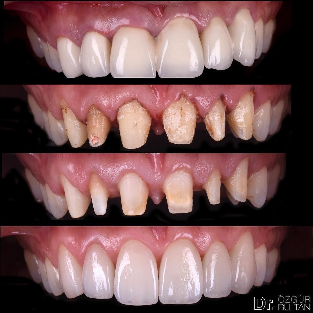Cloistered Dental Crown Metals Dentistselfie