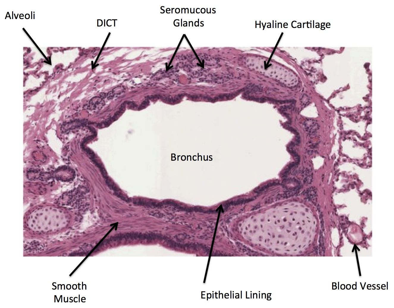 Respiratory Bonchus And Cartilage Histology Human Anatomy