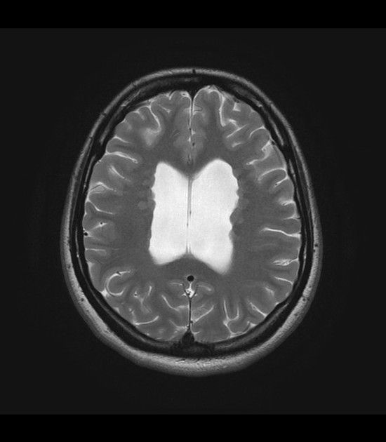 The grey matter heterotopias are a group of conditions characterised ...