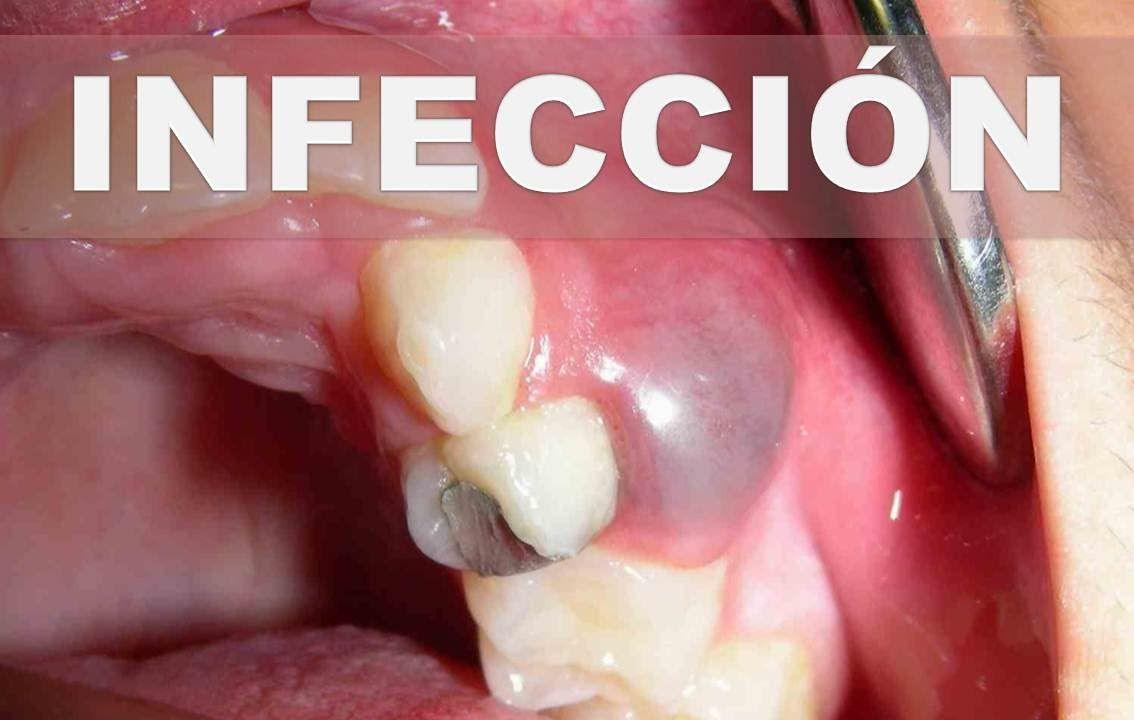 sintomas de infeccion muela