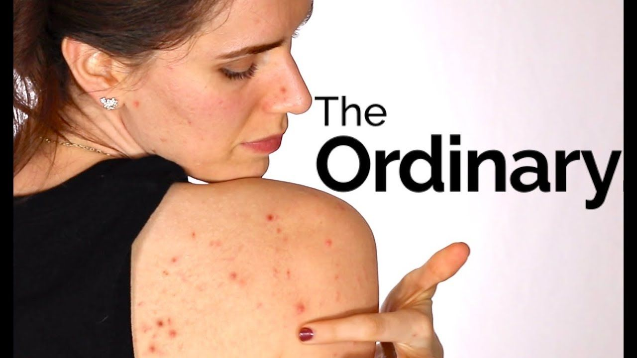 how to layer the ordinary products for acne prone skin