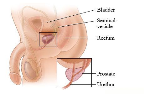 Prostate Cancer Treatment In Ayurveda Ayurveda Articles