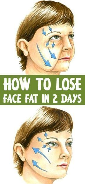 how to get rid of cheek fat in a day
