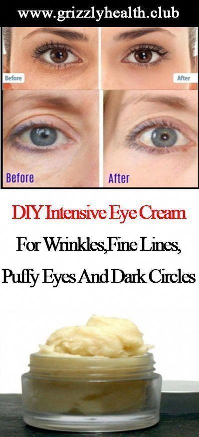 Homemade intensive eye cream for wrinkles, fine lines, swollen eyes ...#cream #eye #eyes #fine #homemade #intensive #lines #swollen #wrinkles