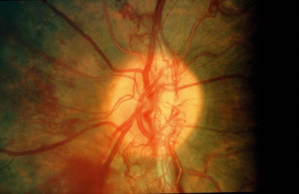 Proliferative diabetic retinopathy Flickr Photo