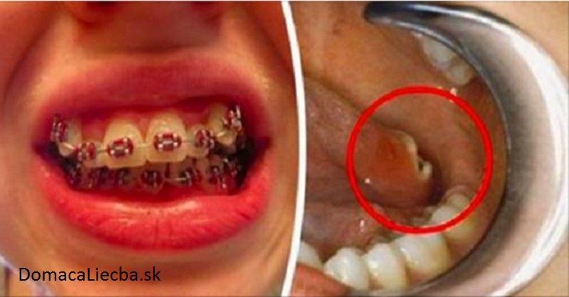 Kto dnes nosí zubné strojčeky, môže mať o 20 rokov rakovinu. Zistite viac