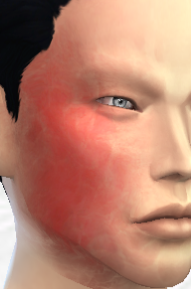 My Sims 4 Blog: Burn Scar by DecayClownSims | My Sims 4 Blog