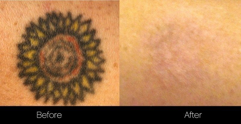 Pin by Tattoo Eraser on Tattoo Removal Laser tattoo