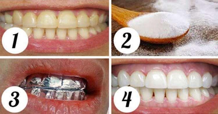 Como Branquear Os Dentes Com Bicarbonato Branquear Dentes