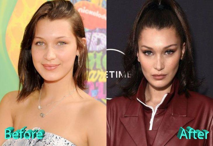 Bella Hadid Plastic Surgery The Catwalk Beauty Queen Modelos