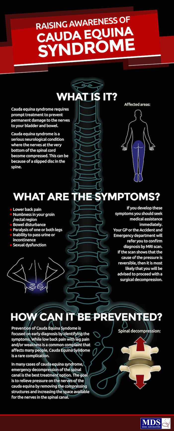 Conus medularis & cauda equina | Nervous system | Pinterest | Cauda ...