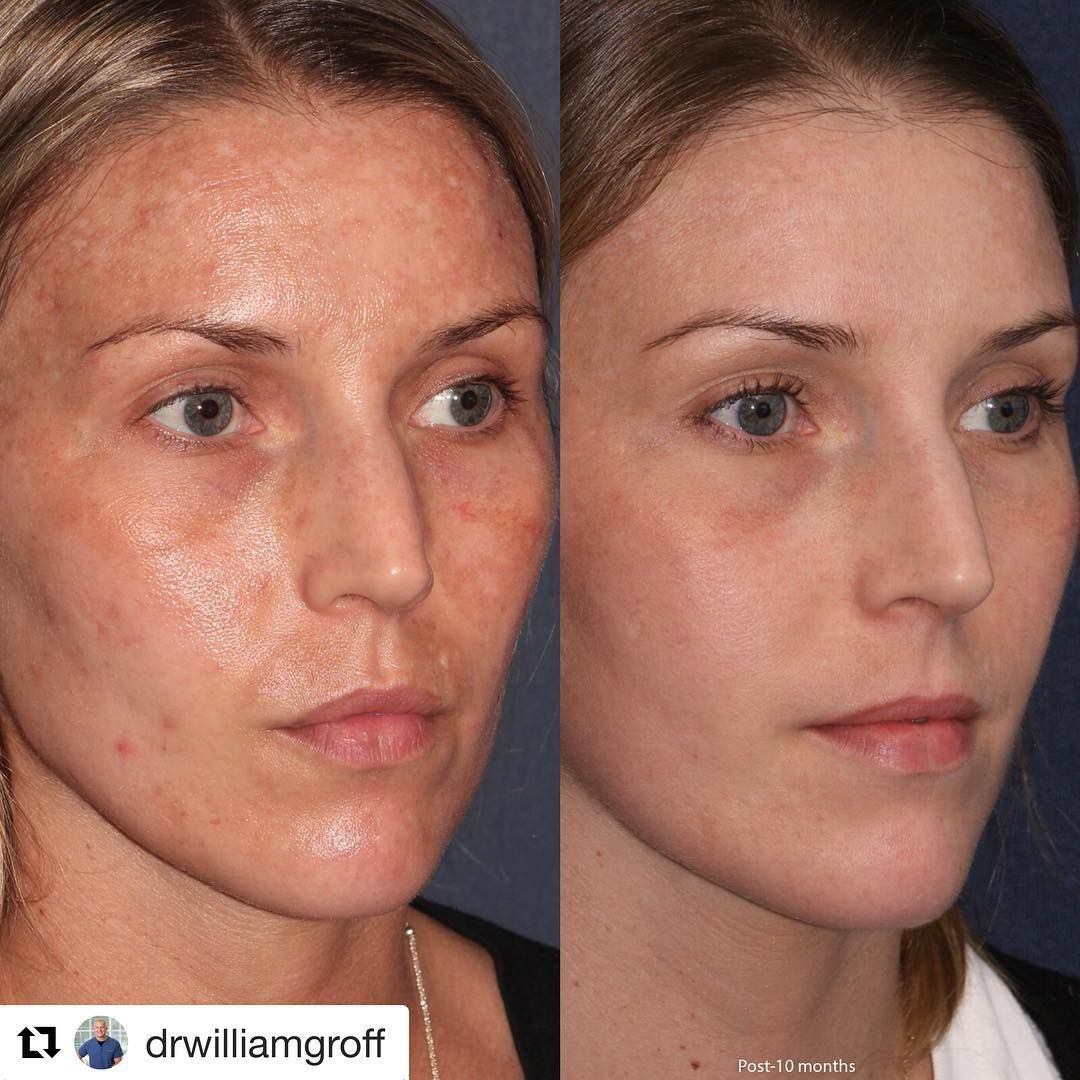 Frank Sweeney On Instagram Wow Thank You Dr Groff Lumenis M22 Ipl Lumenis Aestheticmedicine Skincare Beaut Laser Skin Clinic Ipl Treatment Laser Skin