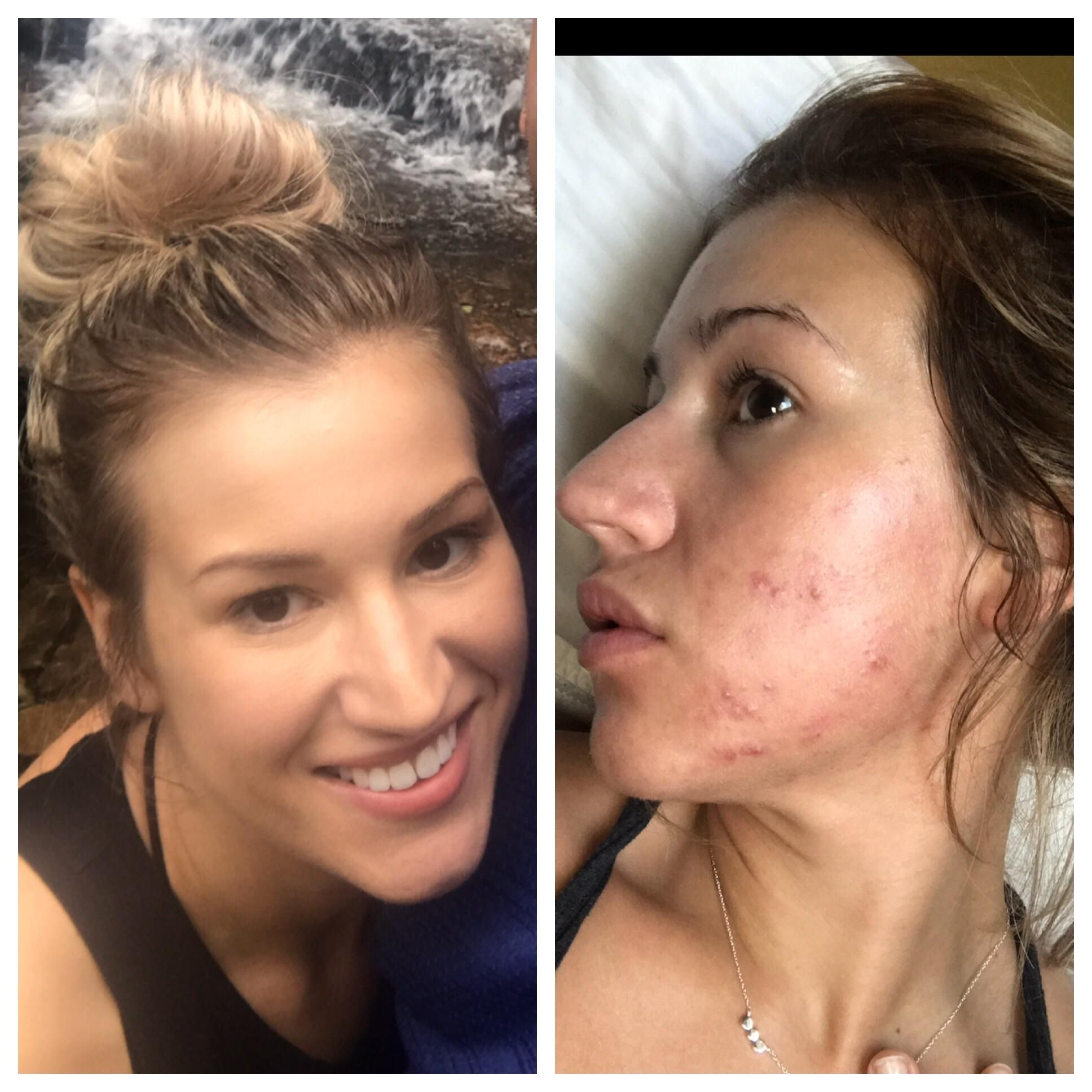 Acne Fungal Acne Malassezia Has Destroyed My Skin May Gt November Suggestions Welcome Acne Skin Make Up