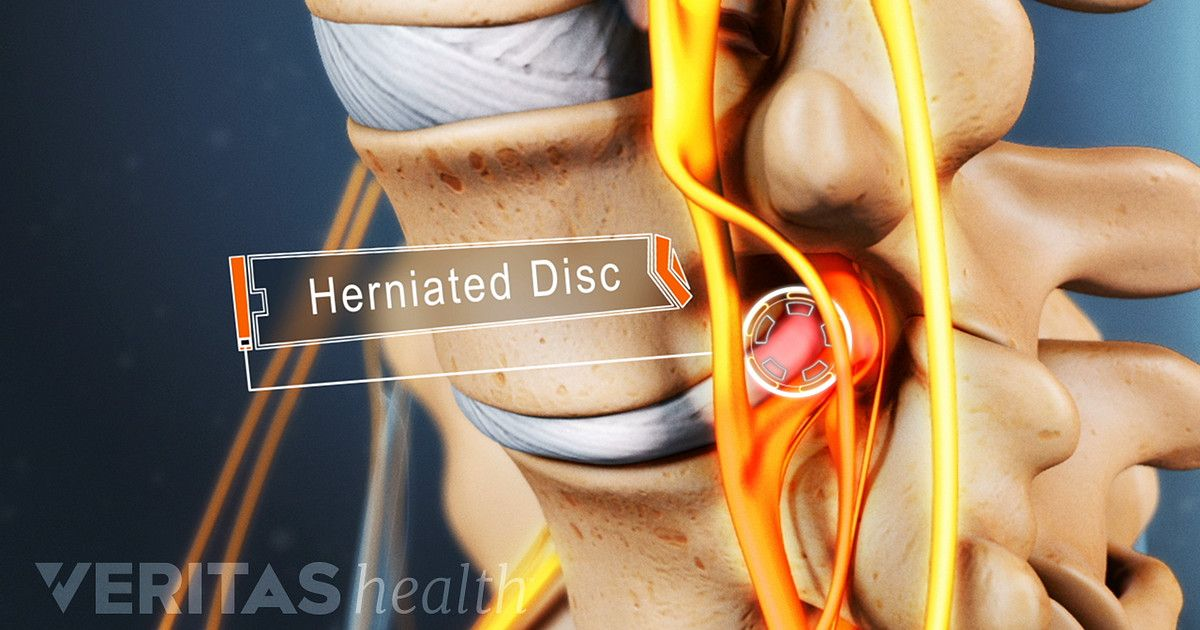 Don't let lumbar herniated disc symptoms stop your exercise routine. Learn what exercises to avoid and herniated disc safe substitutes.