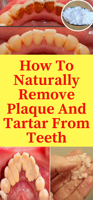 dailyhealthadvisor: How To Naturally Remove Plaque And