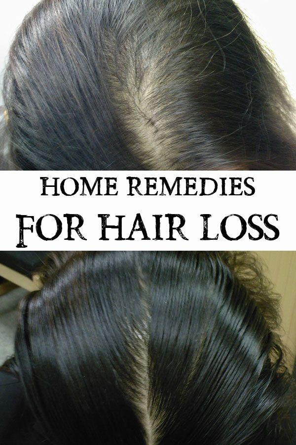 hair growth vitamins men