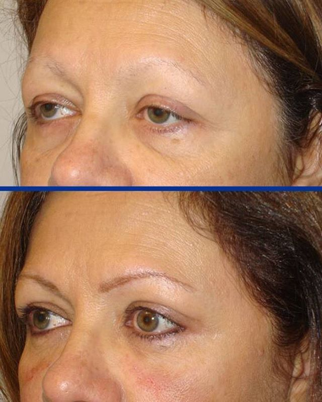 Tabanmd Cosmetic Eyelid Surgery this middle age female - ptosis surgery