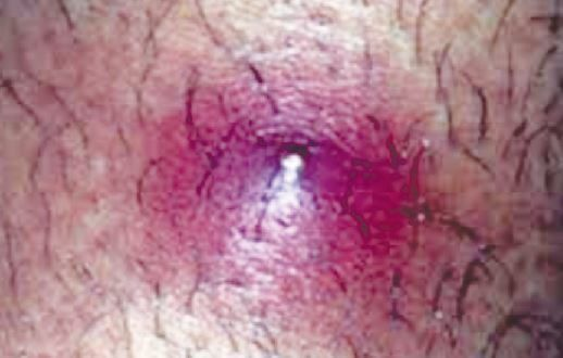 bump on pubic area red swollen hard movable causes get rid