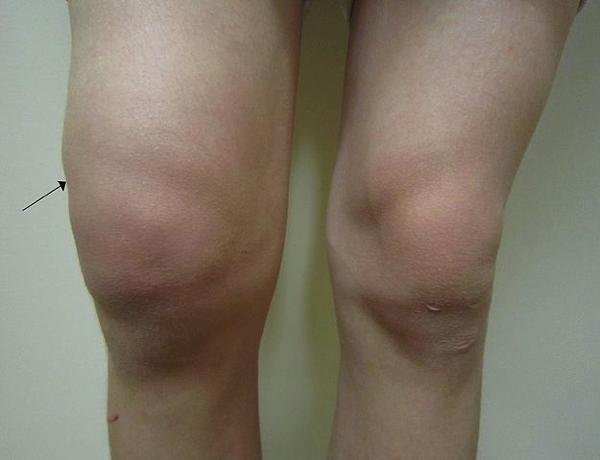 sintomas cuando hay liquido en la rodilla