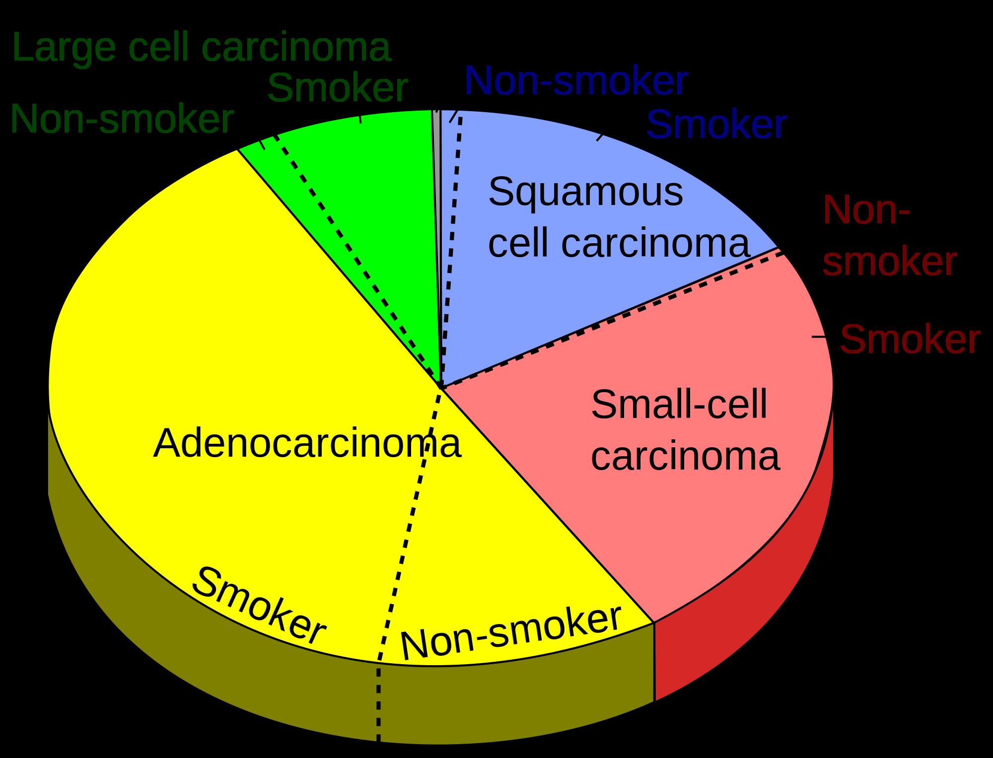 Cancer herbal treatment statistics - Alkaline Diet Cancer Treatment