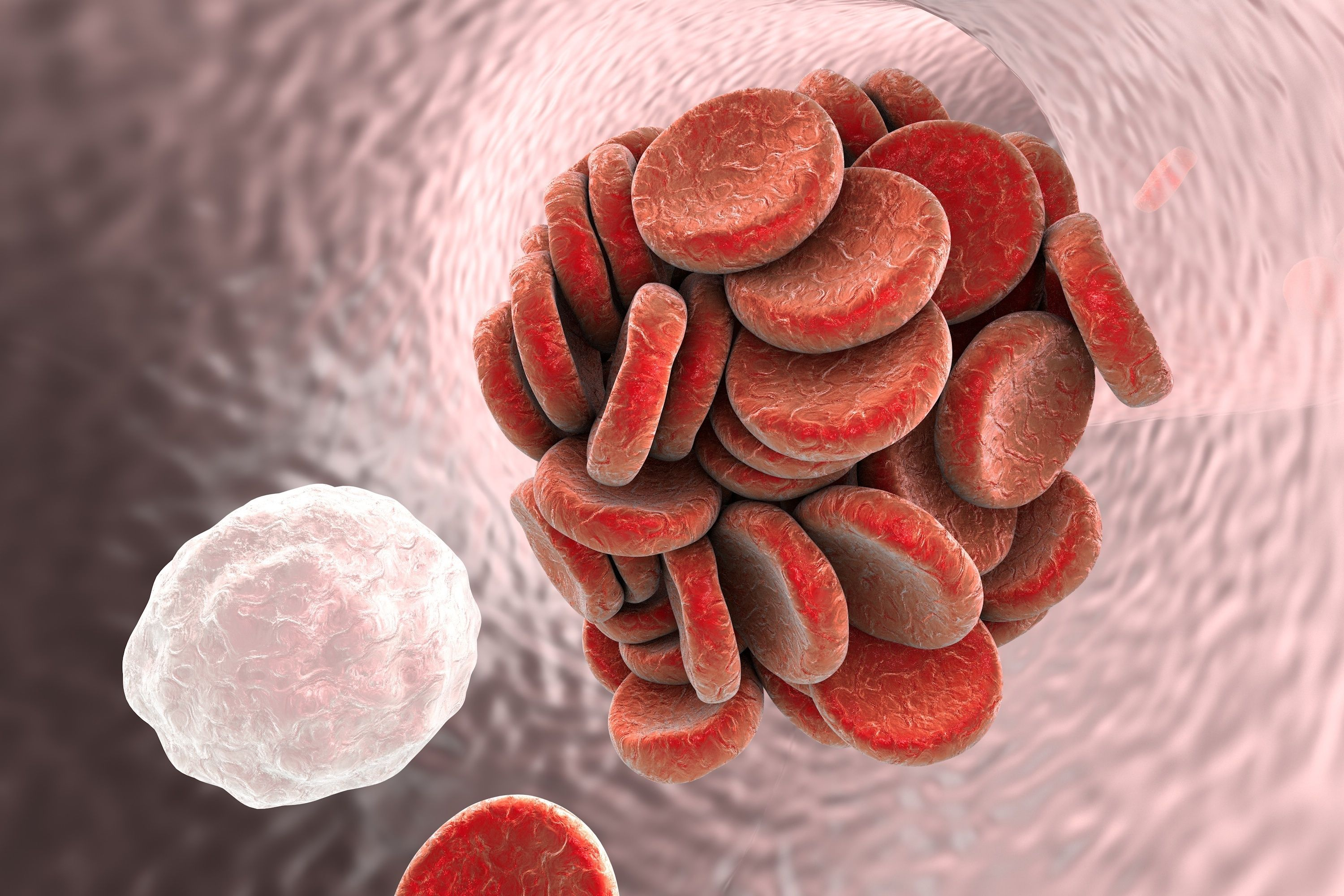 Read about a study finding systemic sclerosis patients are at a threefold higher risk of venous thromboembolism events, especially in year after diagnosis.